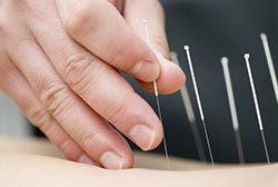 A Acupuncturist puts small needles to help relieve back pain, Acupuncture Coffs Harbour
